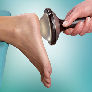 Plantar Fasciitis Shockwave Therapy Treatment in the Bay Area