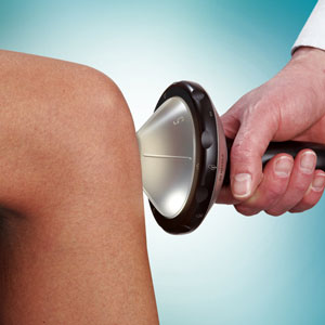 Tibial Stress Syndrome Shockwave Therapy Treatment in the Bay Area